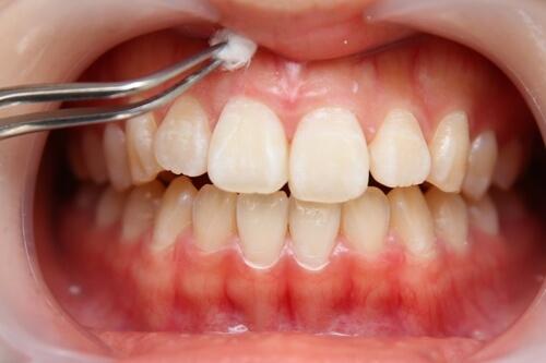 歯ぐきピーリング