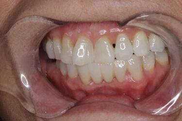 前歯に差し歯がある場合:ホワイトニング後にセラミック治療をした症例