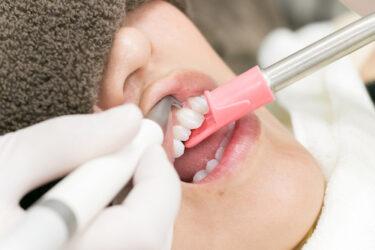 ボーテが行っている全国の歯科医院への研修とは