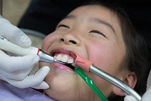 子供の歯のスケーリング