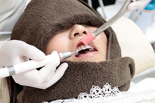 歯の超音波クリーニング