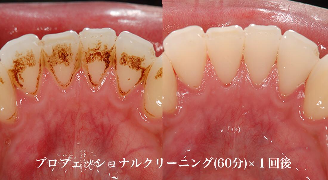 歯のヤニ着色除去のクリーニング効果