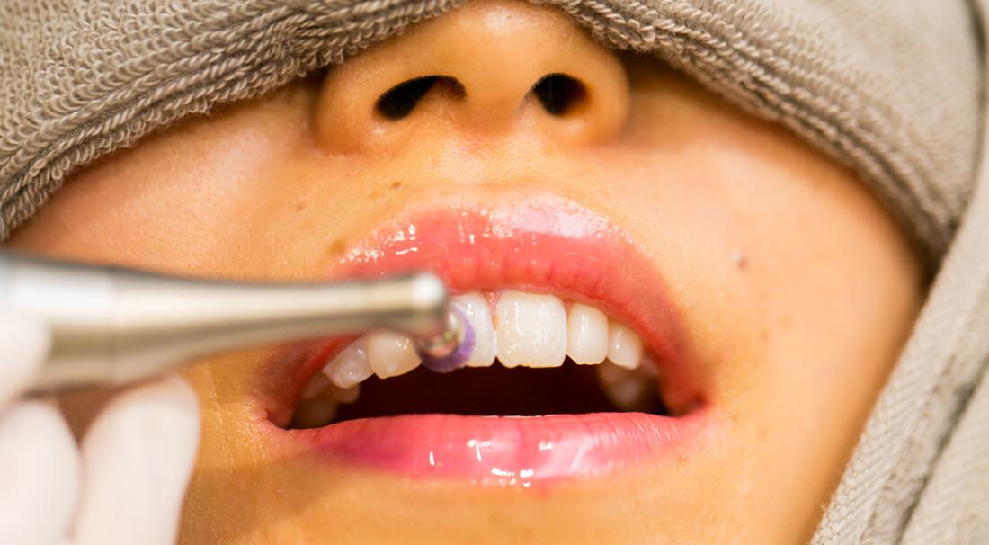 歯のクリーニングで磨く