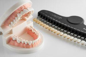 歯の模型とシェードガイド