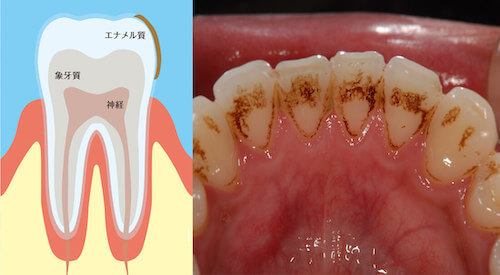 歯の表面の着色ヤニ