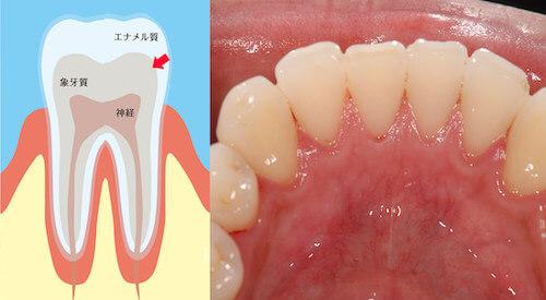 歯の内部の黄ばみ