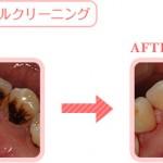健康保険で歯のクリーニングが適用されない?