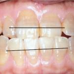 テトラサイクリンによる歯の変色とホワイトニング