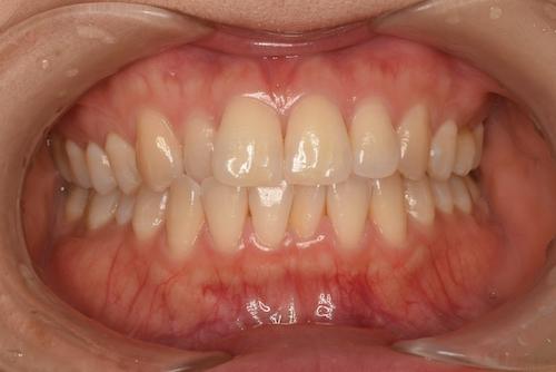 全体的な歯の黄ばみ
