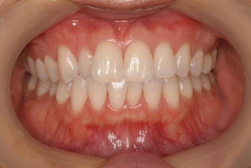 全体的な歯の黄ばみオフィスホワイトニング後