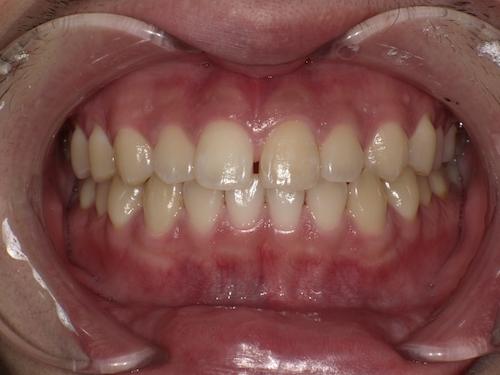 前歯の帯状の変色をホワイトニング