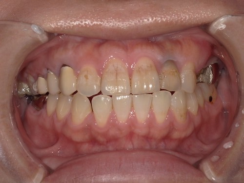 前歯の帯状の変色