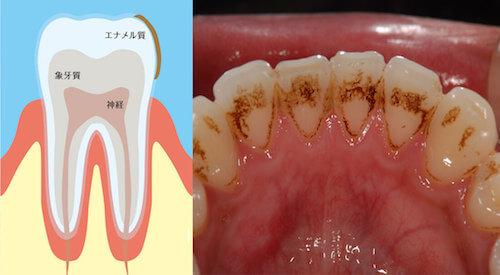 歯の表面のヤニ着色