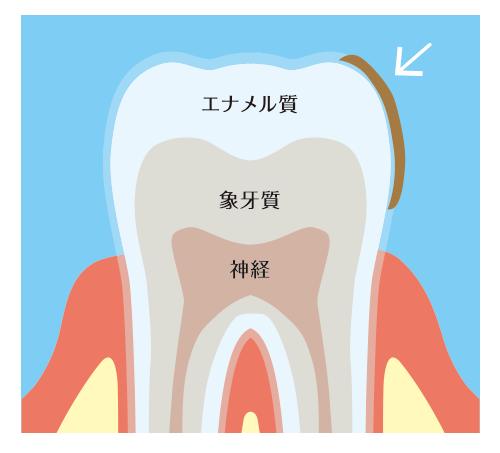 歯の表面の着色、ステイン、ヤニ