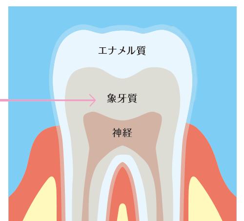 歯の内部の象牙質の黄ばみ